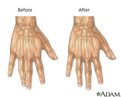 Before and after webbed finger repair