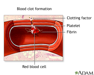 Blood clot formation