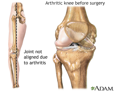 Knee misaligned due to arthritis