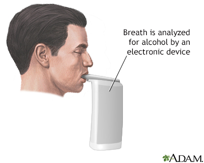 Breath alcohol test