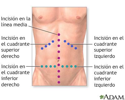 Exploración quirúrgica del abdomen o laparotomía exploratoria - Serie