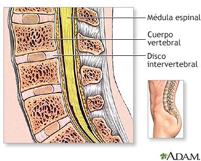 Cirugía de columna lumbar - Serie