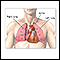 Heart-lung transplant - series - Normal anatomy