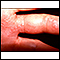 Herpes zoster (shingles) on the hand and fingers
